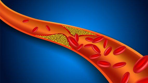 Kenali Penyakit yang Disebabkan Plak dalam Pembuluh Darah